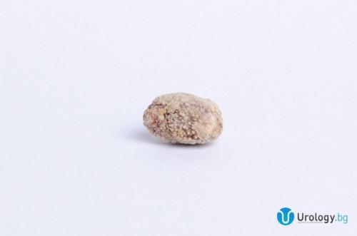Калциево-оксалатен камък