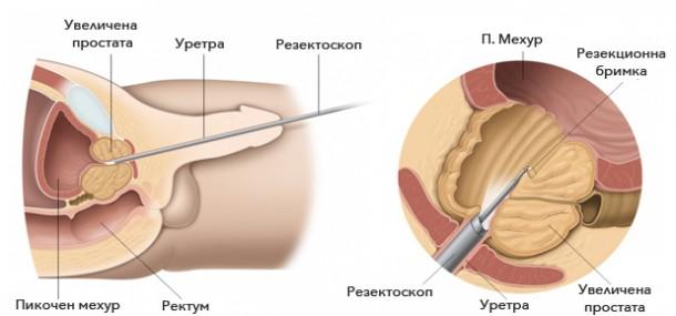 uvelichena-prostata-TUR-P