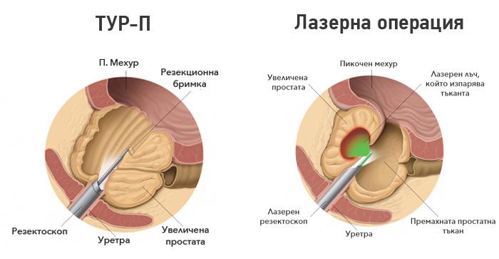 laser-prostata-tur-p