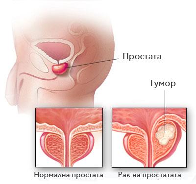 papillorно лъчение na папиломи