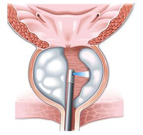 statii-uvelichena-prostata-urology