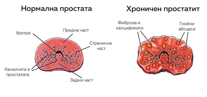 chronic-prostatitis-1-2-3