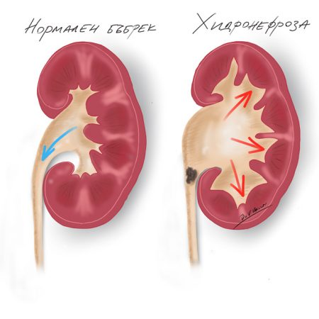 hydroneproza-zapushvane-na-bubreka