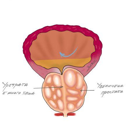 uvelichena-prostata-trudno-urinirane
