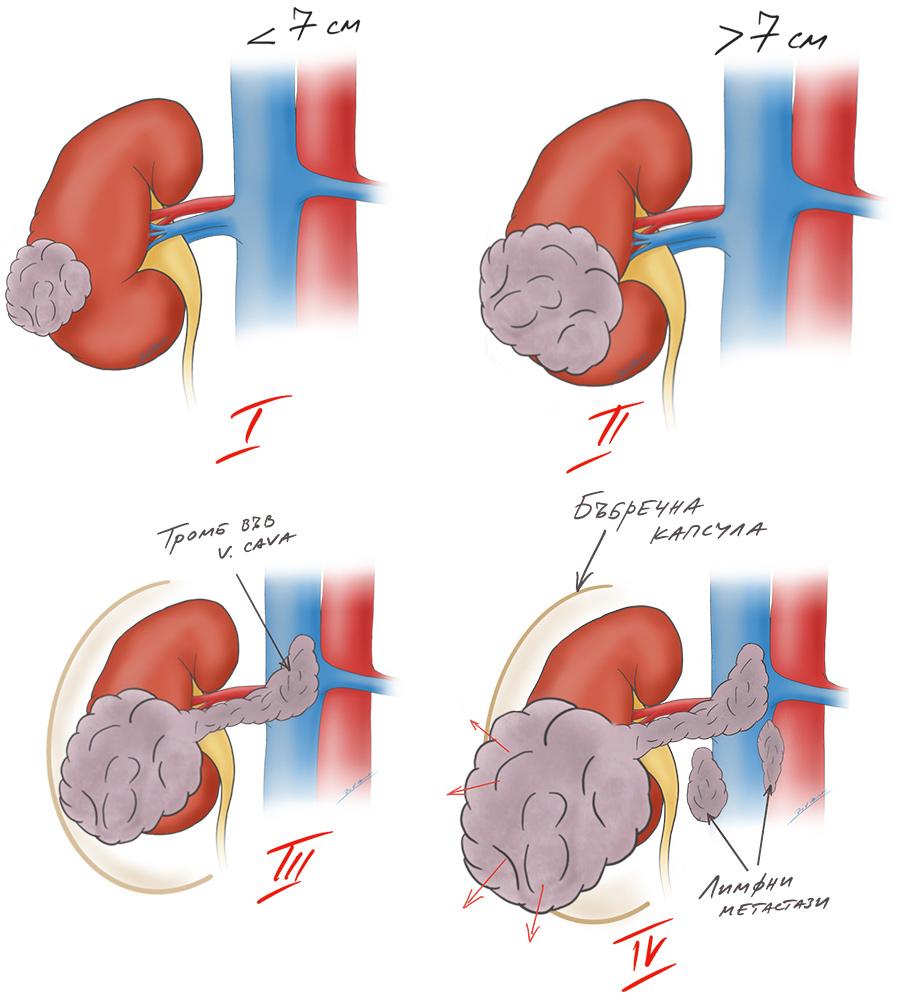 stadirane-tumor-na-bubreka