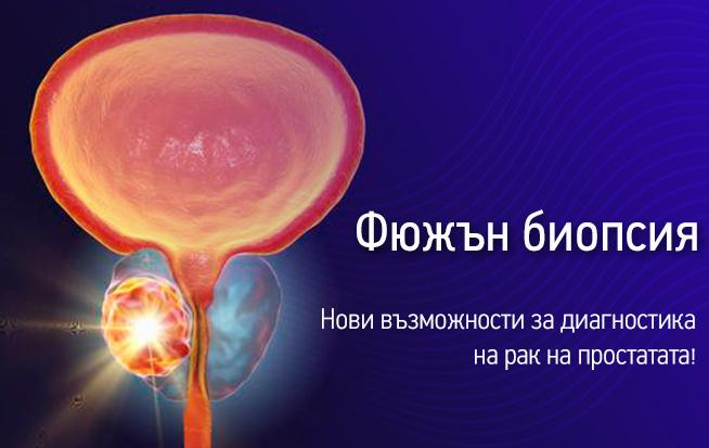 fusion-biopsia-rak-prostatata-ban