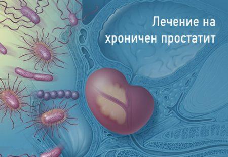 chronic-prostatitis-lechenie-1