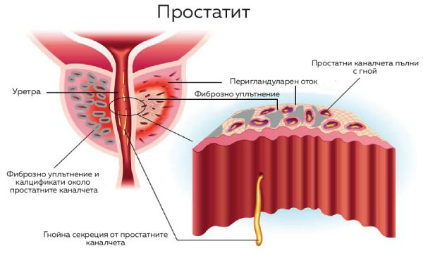 На схемата са представени ацините в простататата и микро-абсцесите в нея, около които се образуват калцификати в простатата.