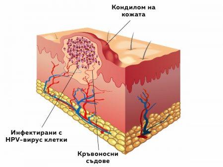 Кондиломи по кожата - зараза с HPV