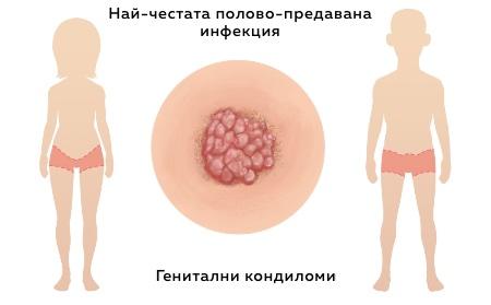 заразяване с кондиломи