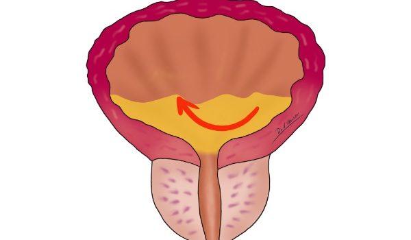 Остатъчна урина в пикочния мехур