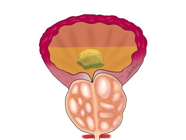 uvelichena-prostata-kamak-mehur