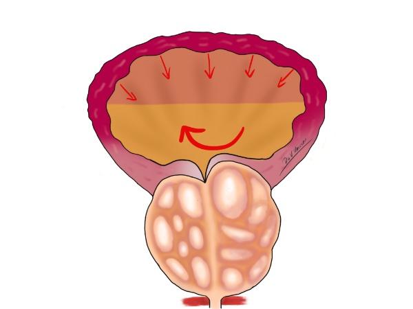Увеличена простата и остатъчна урина в мехура