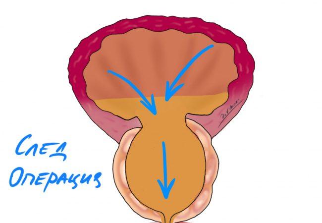 Операция на простатата