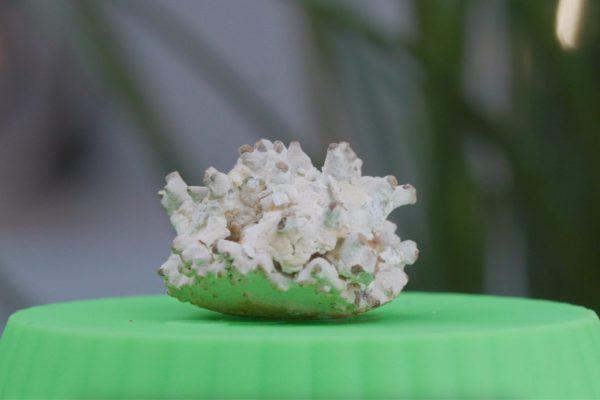 калциево-оксалатен камък в бъбрека